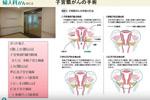 子宮頸がんについて② 治療の詳細と最近の話題
