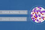 知っていますか?:白血病/米国国立癌研究所(NCI)