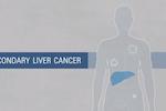 知っていますか?:肝臓がん/米国国立がん研究所(NCI)